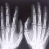 Производитель рентгеновской техники ЗАО «ЭЛТЕХ-Мед»