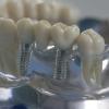 Протезирование зубов и его особенности