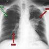Первомайский районный суд обязал омича лечиться от туберкулеза