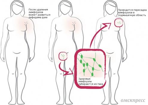 лечение лимфедемы