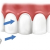 Виниры - накладки на зубы для создания красивой улыбки