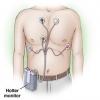 Холтеровское мониторирование – спасательный круг для сердца