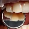 Скол части зуба: с чем связан и возможные способы лечения