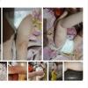Родители двухлетней омички заметили синяки на теле дочери и решили разобраться с няней