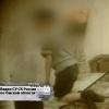 Мальчику из Омска сделали операцию по удалению гречки из колен