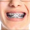 Что делать если у ребенка кривые зубы?