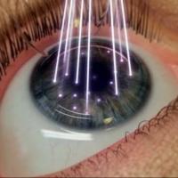 Восстановление зрения коррекцией