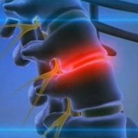 Что такое операция по удалению межпозвонковой грыжи?