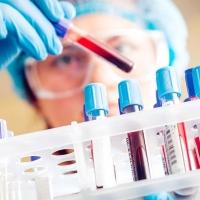 Уровень заболеваемости ВИЧ в Омской области снизился почти на 6%