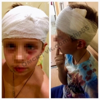 Прокуратура проверит омский «Чадоград» из-за травмы ребенка