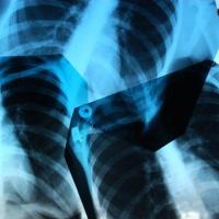 Омские врачи из БСМП №1 получали большую дозу облучения