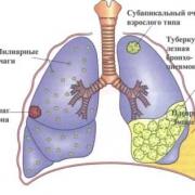 Где осуществляется хирургическое лечение туберкулеза