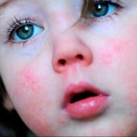 В январе более сотни омичей заболели скарлатиной