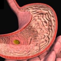 Гастрит желудка и его лечение