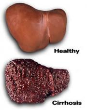 Как можно защитить себя от гепатита B