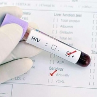 Больше всего ВИЧ-инфицированных омичей проживает в Советском округе