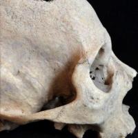 В Сибири нашли скелет самого древнего онкобольного
