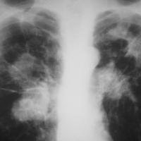 К 2030 году туберкулез будет стоит экономике $1 трлн