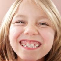 Как выровнять кривые зубы
