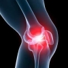 Артроз – опасная болезнь суставов, требующая срочного лечения