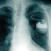 В омском кардиологическом диспансере начали проводить программирование кардиостимуляторов
