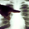 Онкология - признаки, причины появления и лечение