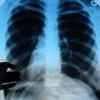В общежитии Омска проживал студент из Конго с туберкулезом