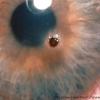 Ранение глаза - первые действия