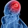 Врачи обнаружили у Ирины Александровны опухоль мозга