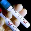 За 1,6 млн рублей в Омске появится реклама по профилактике ВИЧ-инфекций