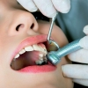 Лечение зубов у самых маленьких