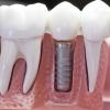 Какие этапы включает в себя имплантация зубов?