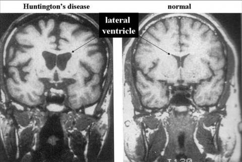 Ученые изобрели новый препарат для борьбы сболезнью Хантингтона