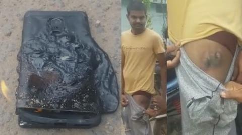 В Индии у мужчины взорвался смартфон Xiaomi