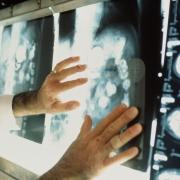 Онкологии нанесут ядерный удар