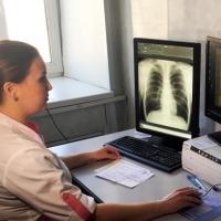 В Омской области смертность от туберкулеза снизилась почти на 30%