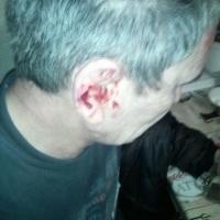 Омский инвалид обвинил сотрудников уголовного розыска в избиении