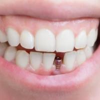 Имплантация зубов под ключ и другие процедуры в стоматологии «СТаФ»