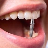 Имплантация зубов: отличный способ восстановить яркую улыбку