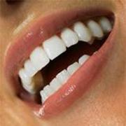 Лечение в частной стоматологии