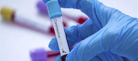 34 человека заразилось коронавирусом в Омске за последние сутки
