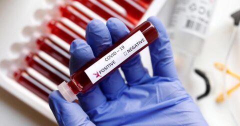 За последние сутки у 69 человек в Омской области подтвердился коронавирус