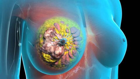 Ученые: разработан препарат против рака молочной железы