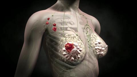 Причину развития особо опасного рака назвали ученые из США
