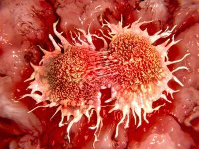 Ученые создали новое соединение лекарств, которое борется со многими видами рака