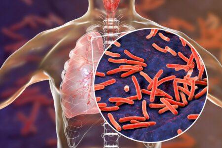 Оружие против туберкулезной палочки нашли внутри неё же