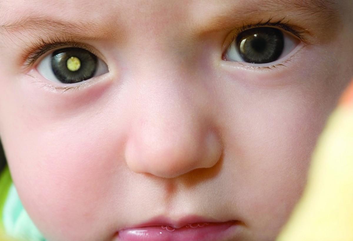 Ретинобластома у детей