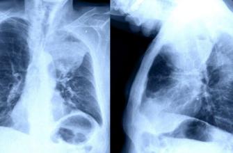 Как быстро развивается рак легких