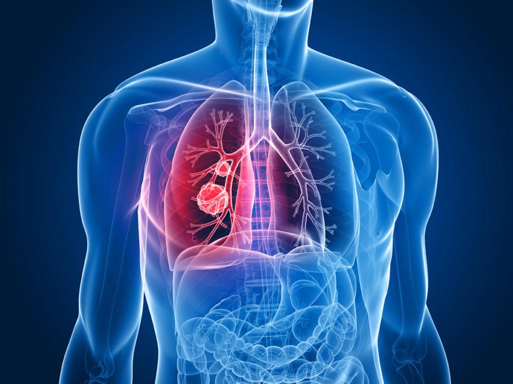 FDA одобрило первое целевое лекарство от распространенной мутации рака легких