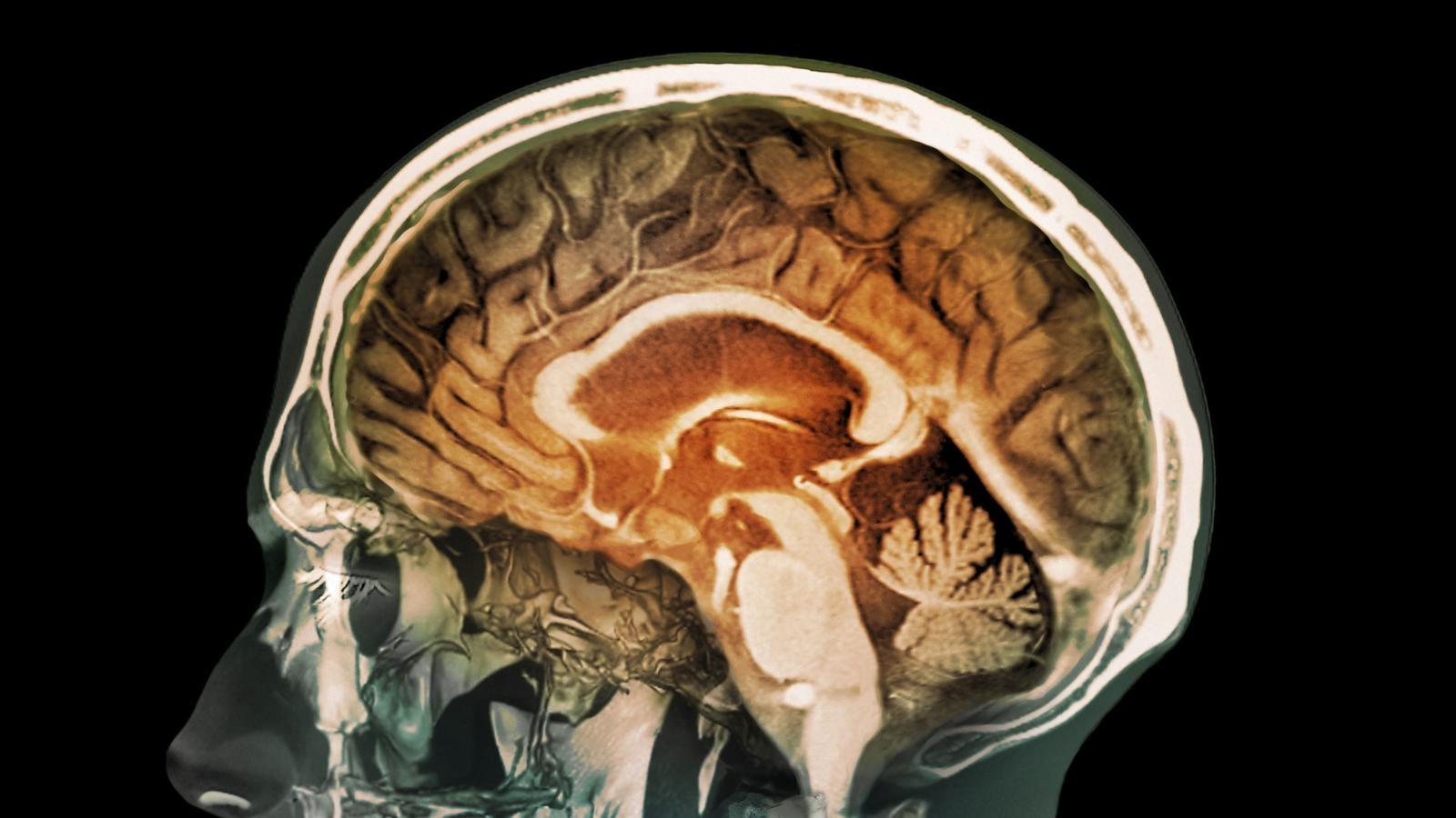 Исследования показали, что череп — источник иммунитета мозга